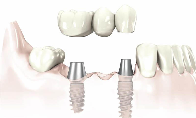 Bridge Over Implant